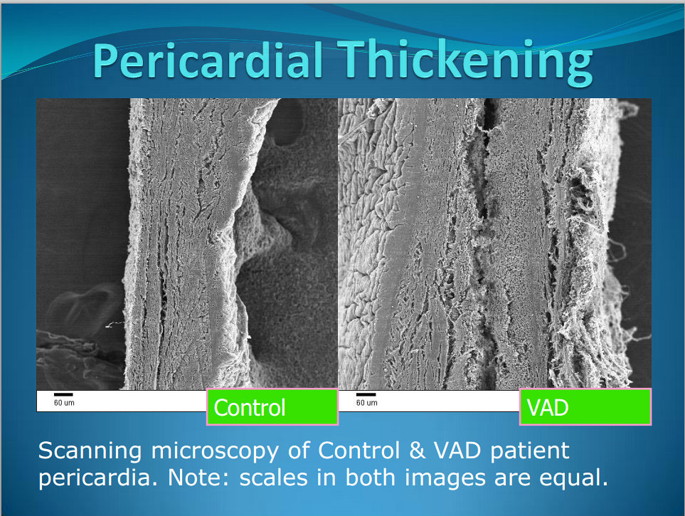 pericardial thickening